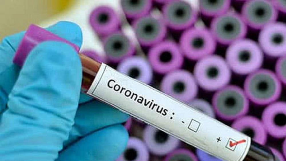 Коронавірус підтвердили у 128 мешканців області