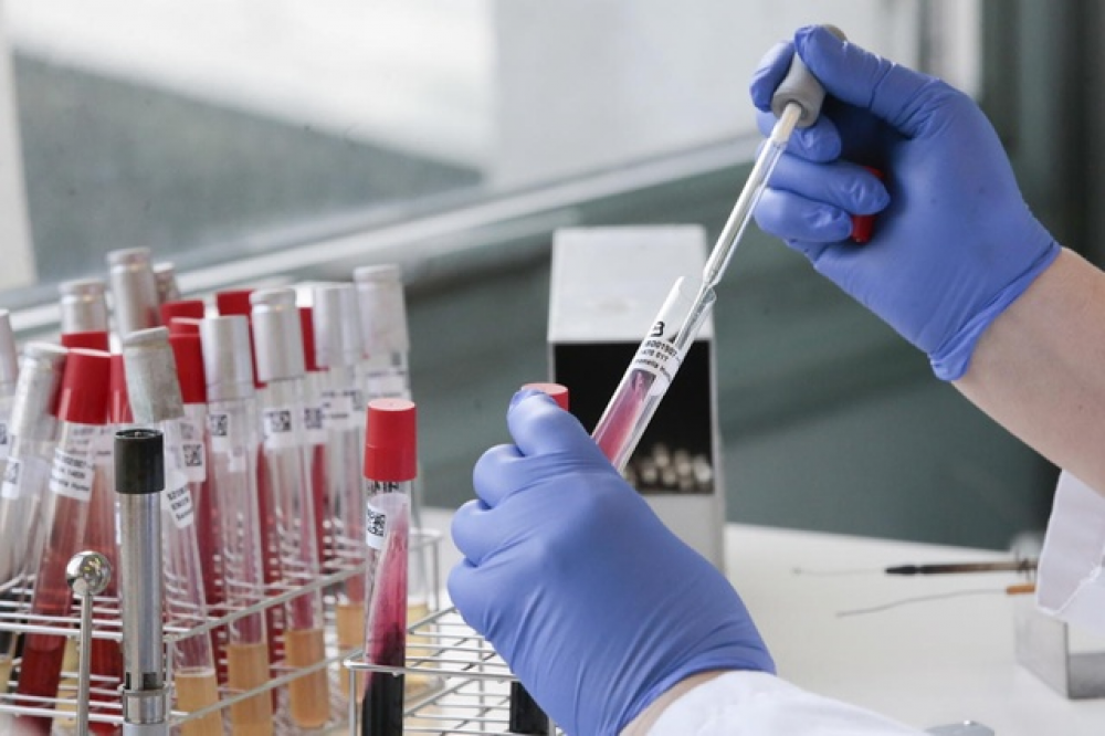 У понад 370 мешканців Львівщини підтвердили коронавірус