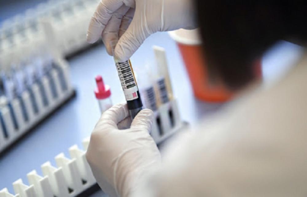 Коронавірус підтвердили за минулу добу у 465 мешканців області