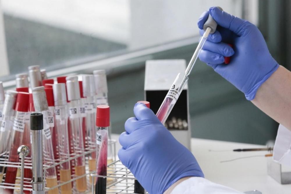 За добу коронавірус підтвердили у 247 мешканців Львівщини